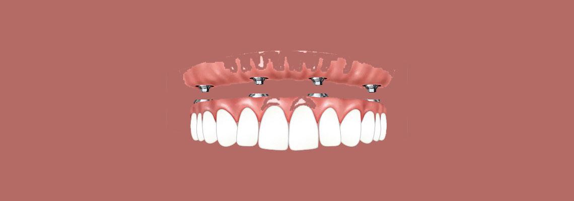 dentier clipsé sur implants